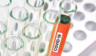 Manejo de muestras biológicas en pacientes con COVID-19