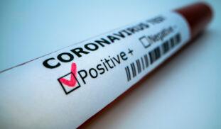Test diagnóstico de la Covid-19