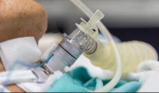Cuidados de enfermería en la realización de una traqueostomía